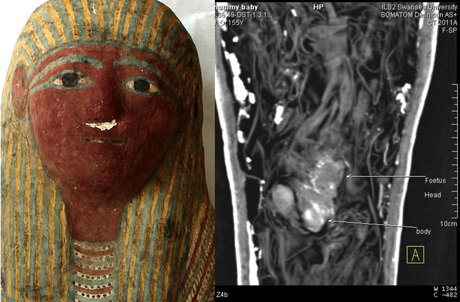 Mummified Fetus Found in Tiny Ancient Egyptian Sarcophagus