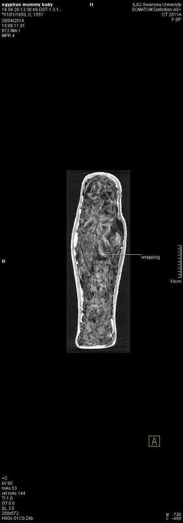 EGYPTIAN MUMMY BABY. CT.THORAX