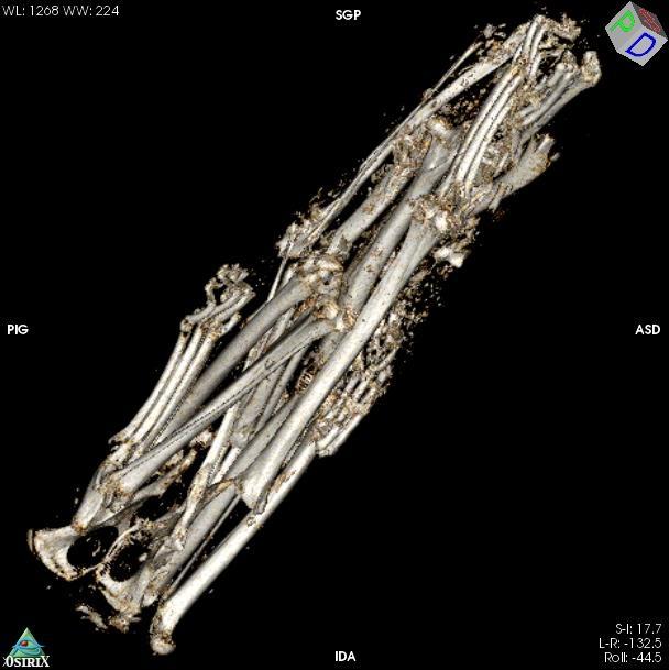 Reconstitution volumique de l'amas osseux.
