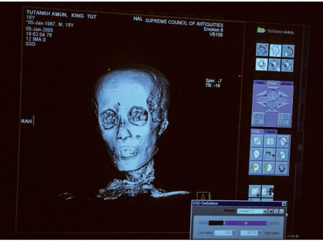 son crâne a été malmené lors de la momification